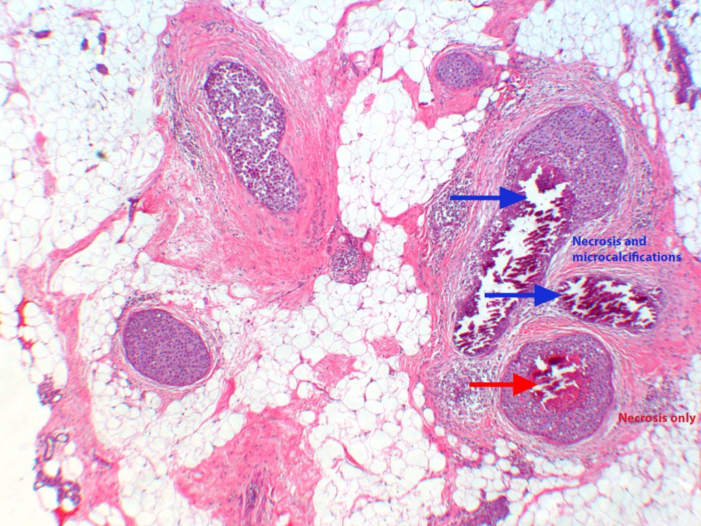 Ductal Carcinoma with text
